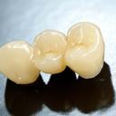 dental-bridges-blue-mountains